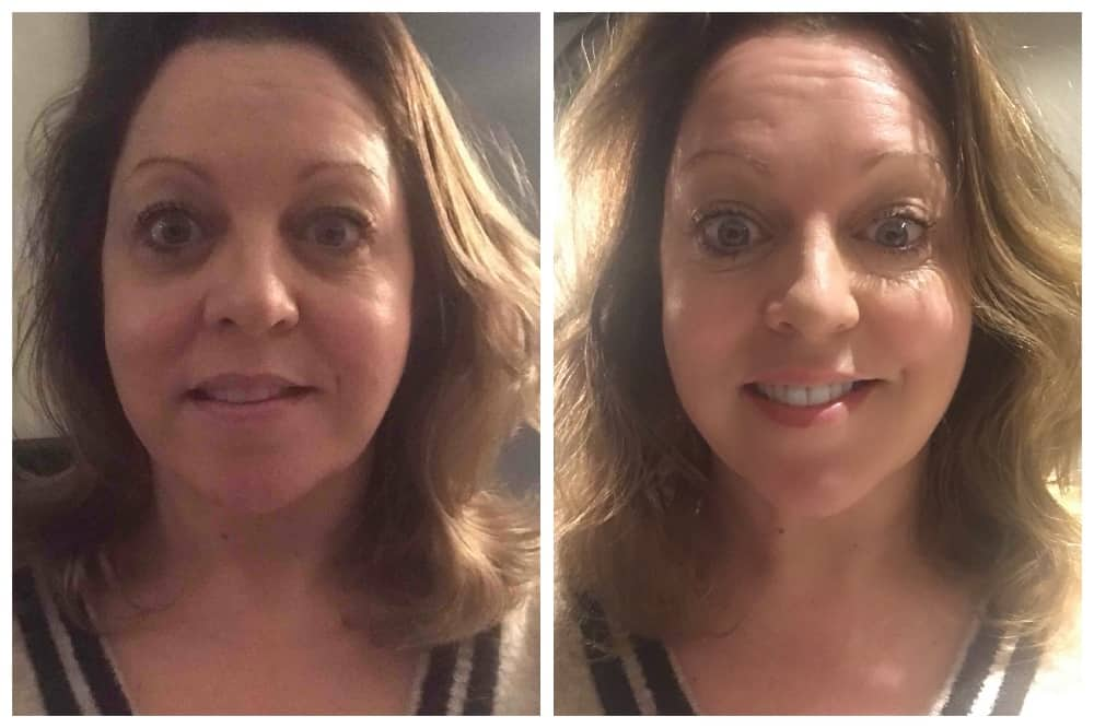 Bridge street Skin Clinic facial before and after