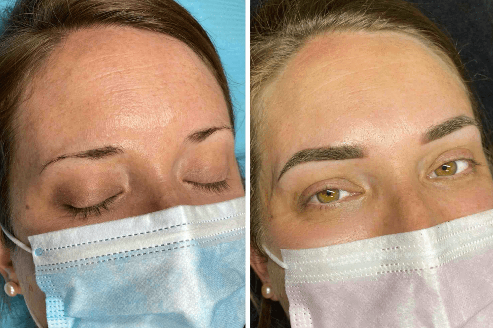 Just Brows before and after
